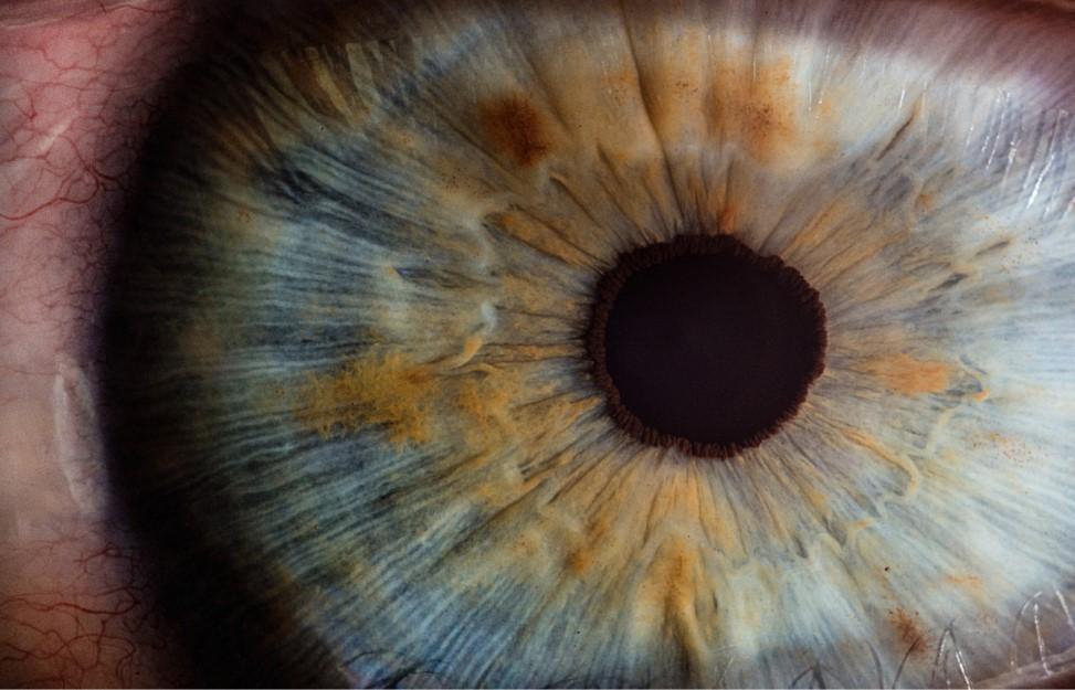 ameliorarea vederii cataractei