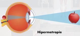 se numește hipermetropie craniofaringiomul vederii