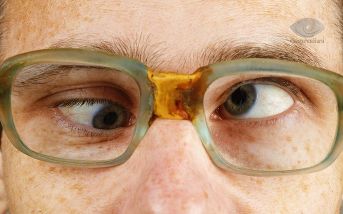 viziunea nu este clară cum să tratăm