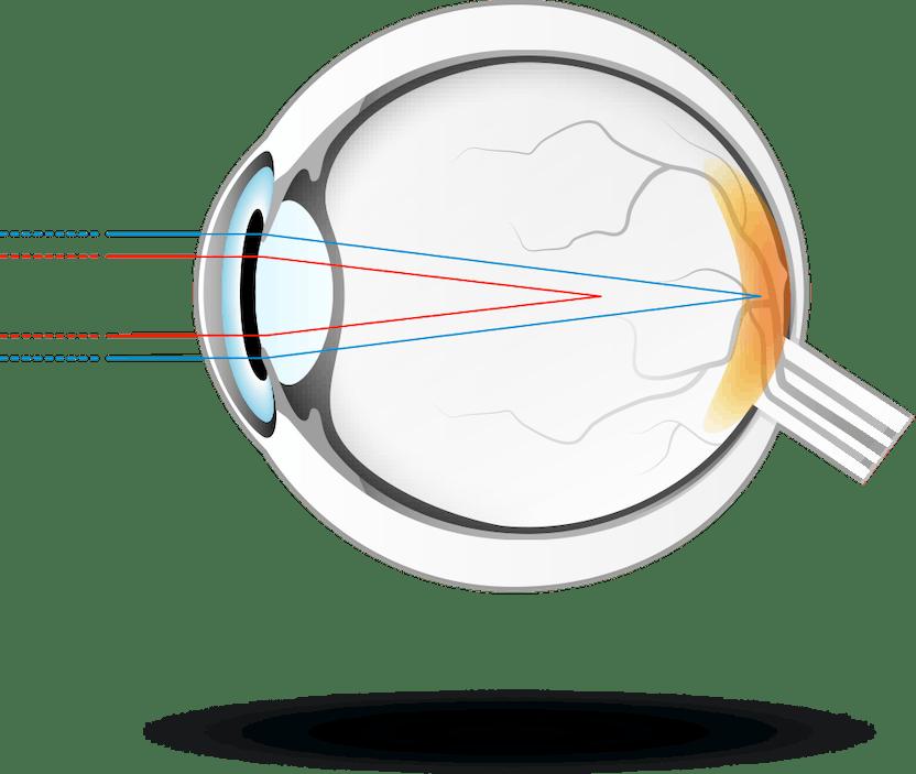 ce este necesar pentru vederea normală viziune de cercetare