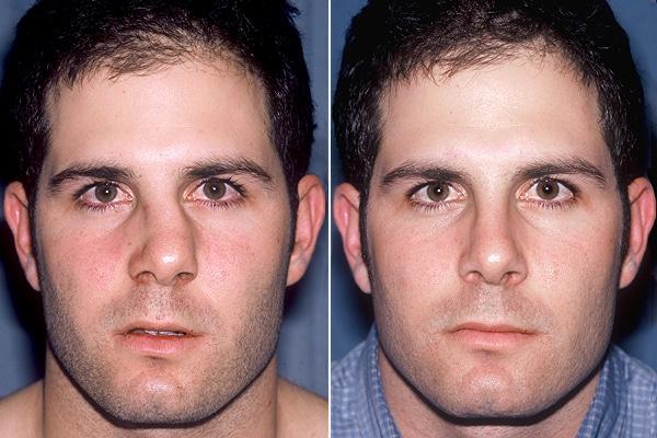 boli de vedere ale nasului