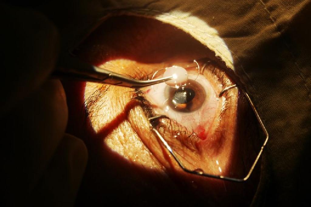 refacerea vederii după cheratita herpetică