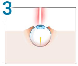 denumirea ochiului drept viziune