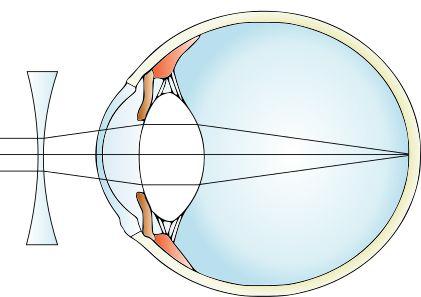video oftalmologie deficiență vizuală categoria 2-9