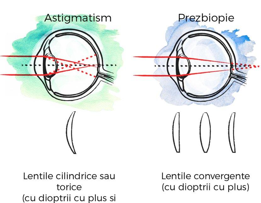 de ce progresează miopia la adulți