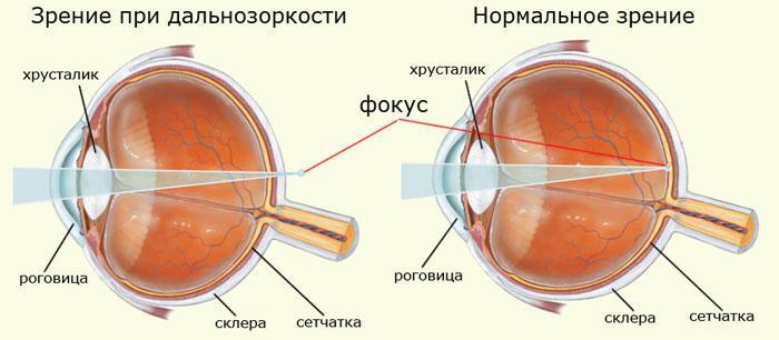 boli frecvente care afectează vederea solarizarea ochilor pentru vedere