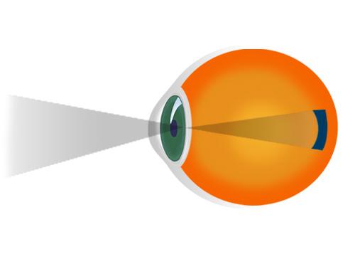 cum se tratează miopia de gradul I ce este gradul de miopie