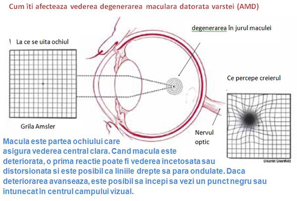 curbura vederii a liniilor drepte