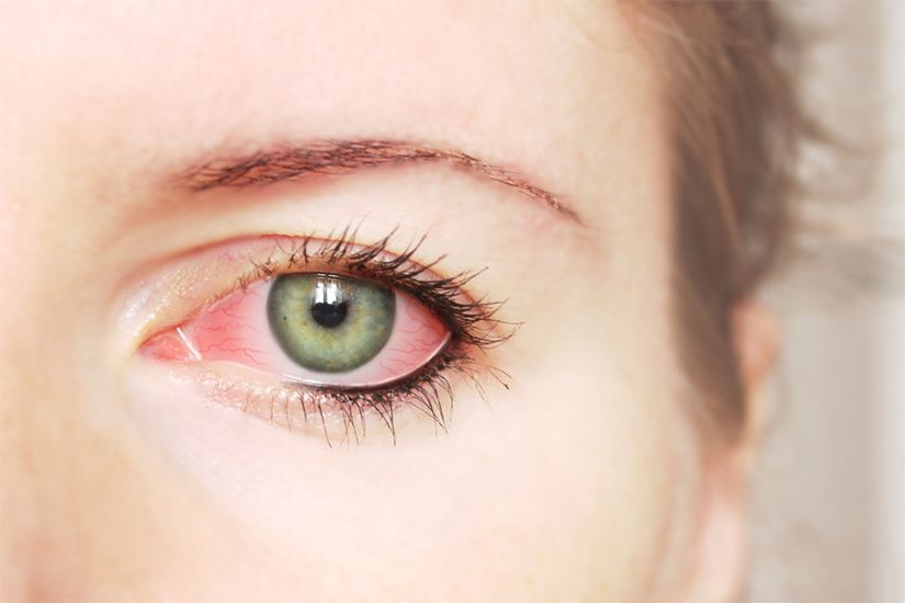 tratament nociv pentru ochi test vizual redus