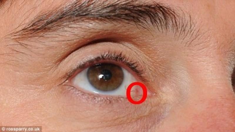 miopie și astigmatism exerciții oculare