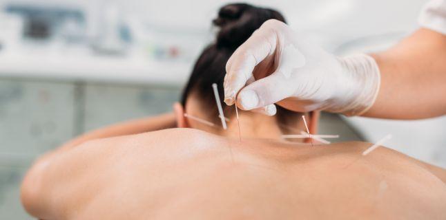 acupunctura poate restabili vederea