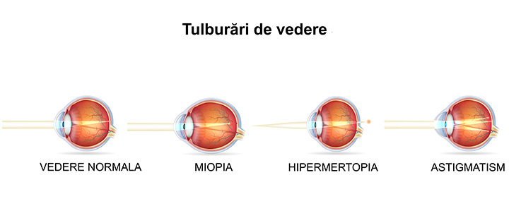 distanta pentru vederea normala