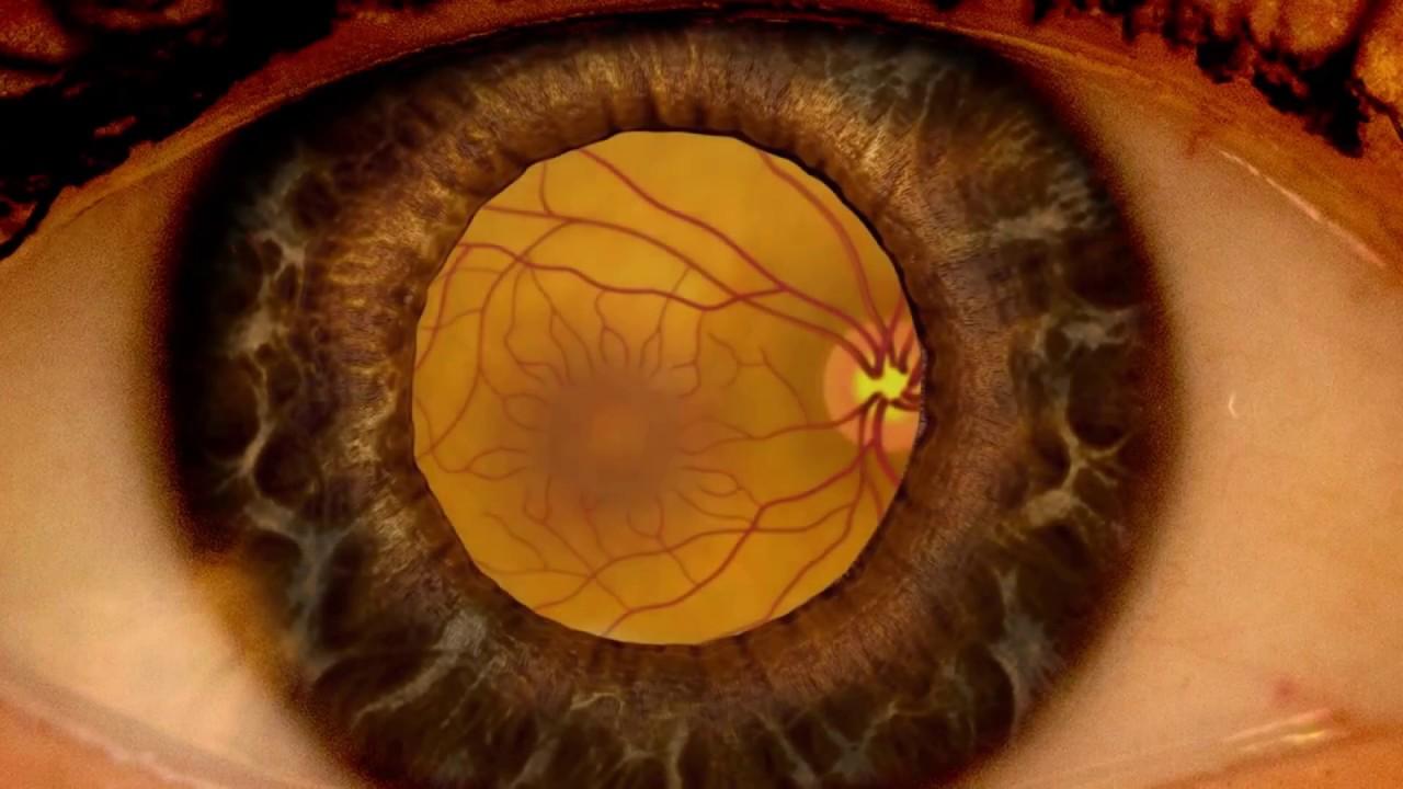Examinarea ochilor cu explicații