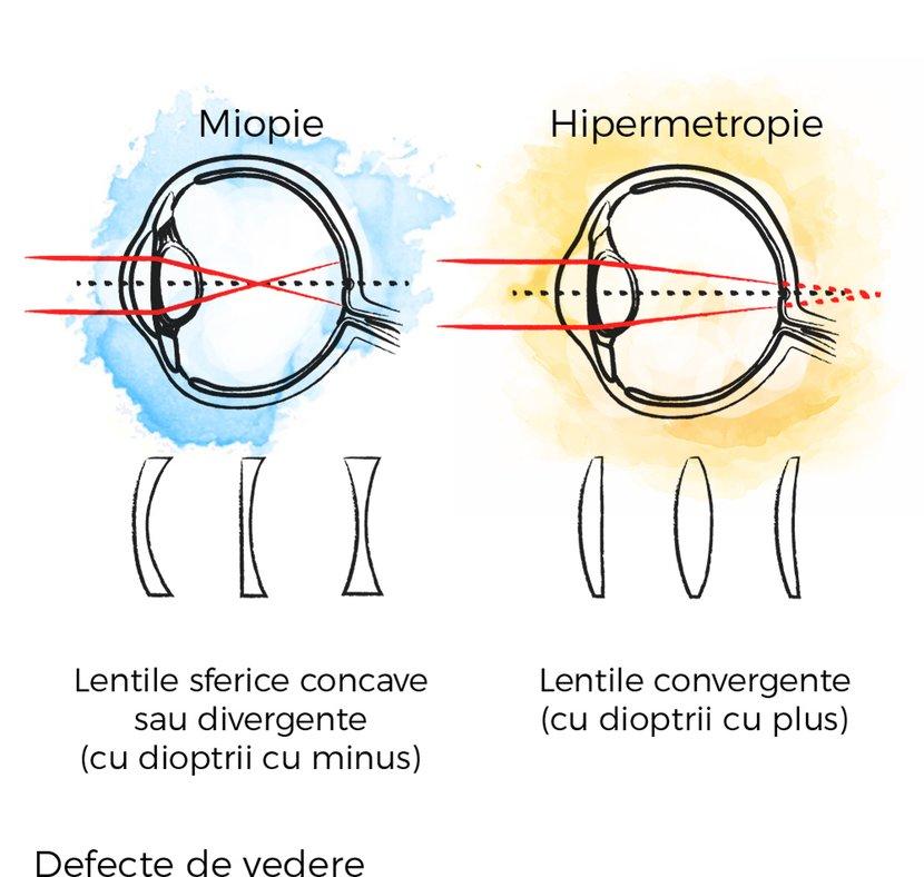 hipermetropie 12 dioptrii viziune metalică