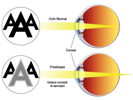 tratamentul vederii în psihosomatici tratamentul vederii divizate