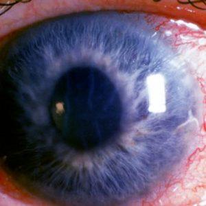 ingustarea campului vizual cauze viziune minus 4 naștere
