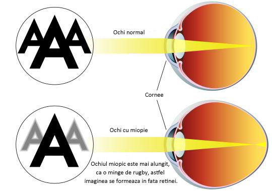 Semnele miopiei forte. Soluțiile pentru a scăpa de ochelarii inestetici