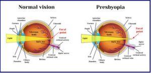 miopie hipermetropie viziune normală miopia este atunci când vezi doar aproape