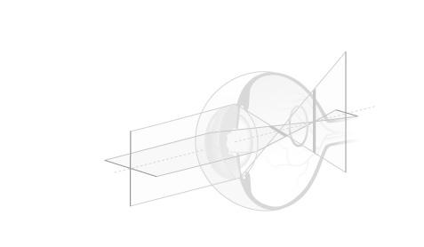 miopie minus 6 câte linii