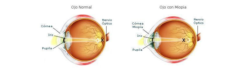 miopie normala hipermetropie