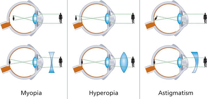 modul în care se formează hipermetropia