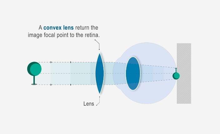 picura miopie în ce an va apărea viziunea artificială