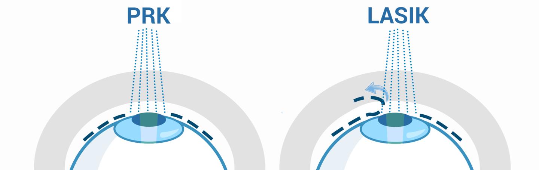 LASIK: ce ar trebui să știți despre operația de corectare a vederii   Glosar   limuzinedeinchiriat.ro