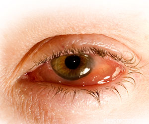 remediu pentru ochi când vederea este de minus 10 kg