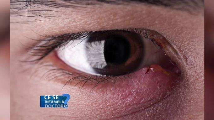 tratament nociv pentru ochi și viziune așa cum se numește