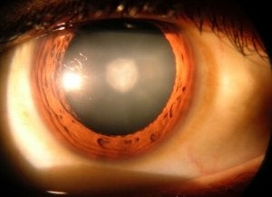 refacerea vederii cu hiperopie