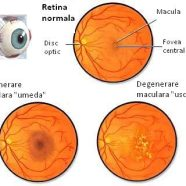 Tulburari ale vederii de departe (Miopia)