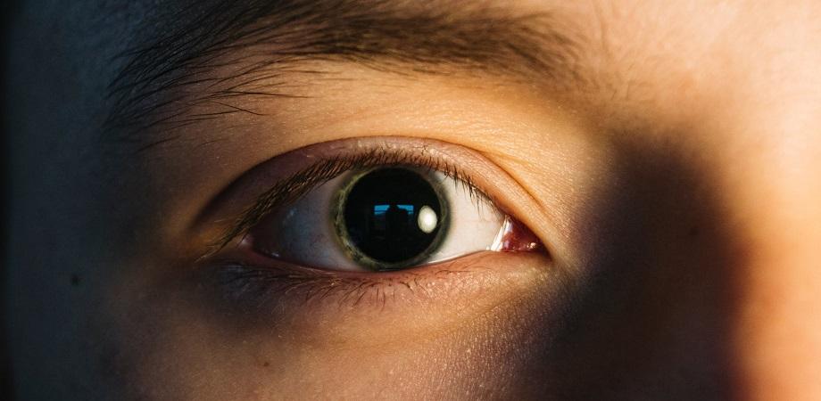 vedere dilatată a pupilei viziunea minus 4 este miopie