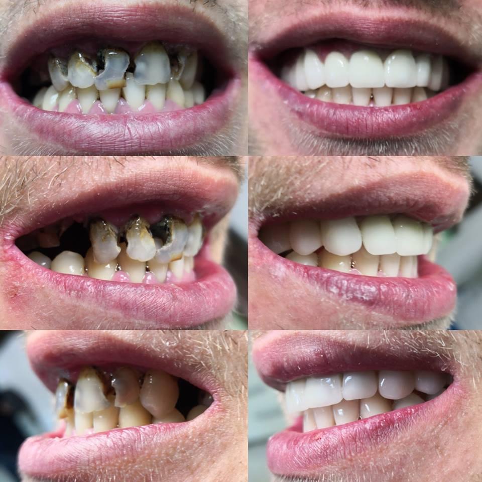 vedere încețoșată după extracția dinților restabilirea trombozei vederii