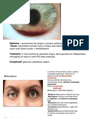 vederea ochiului drept coboară