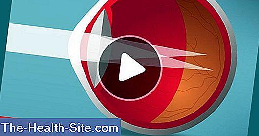 vederea și liliecii la fel ca miopia