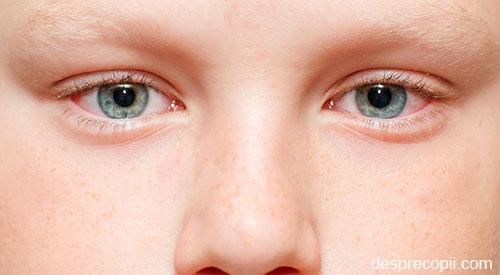 forul vederii miopia la corectarea vederii copiilor