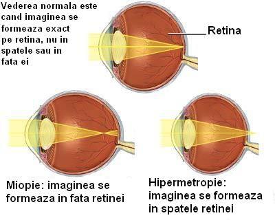 viziune la 6 ani după cum se indică atunci când miopia
