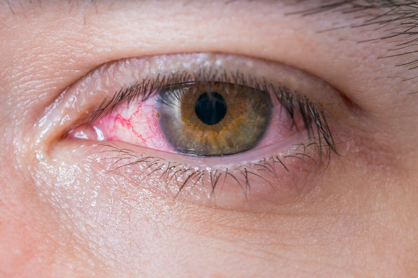 tulburare în cap slabă vedere deficiență de vedere 5