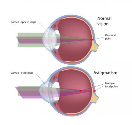 astigmatism și miopie progresivă