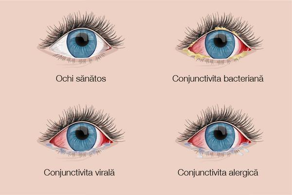 metode de tratare a vederii oculare