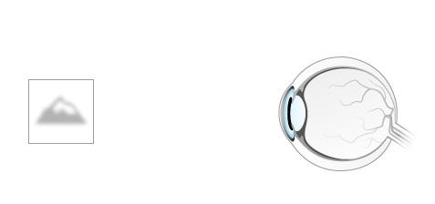 istoric de caz în oftalmologie keratită posttraumatică chirurgie pentru îmbunătățirea consecințelor vederii