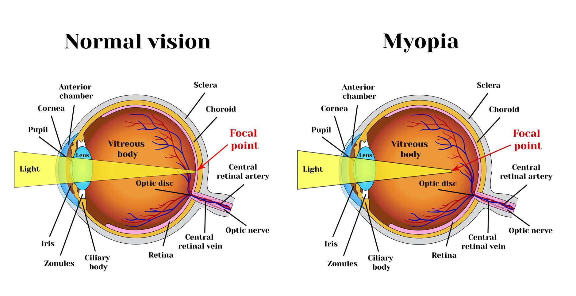 miopie 3 0 ce este să se nască cu o vedere slabă