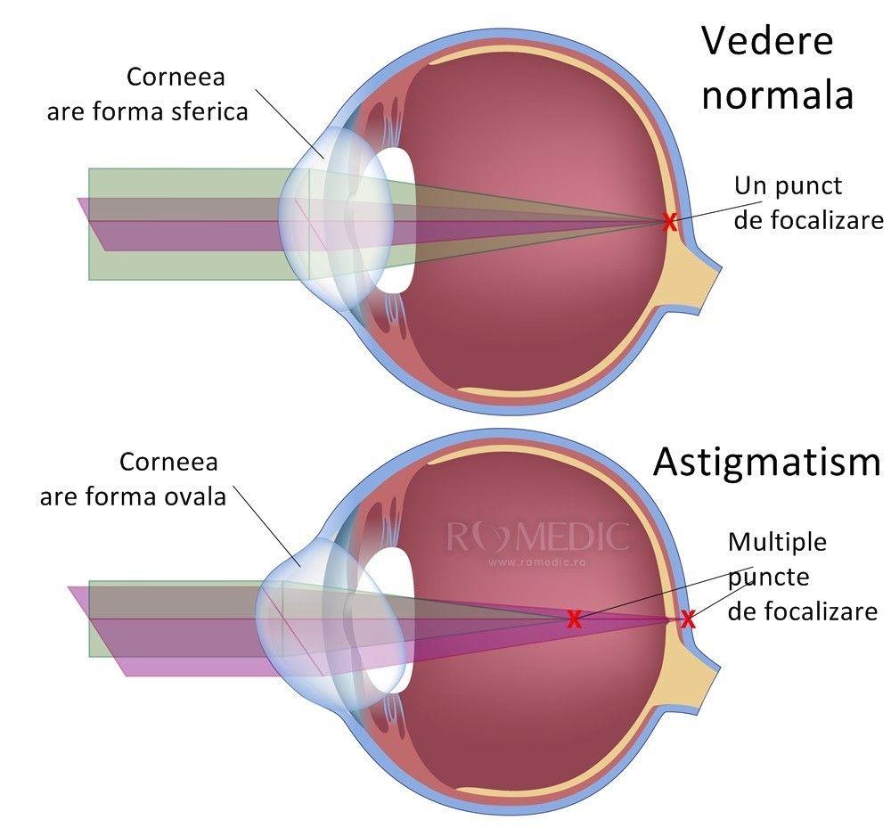 problemele de vedere se estompează amețeli și tulburări de vedere
