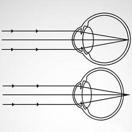 cum se tratează astigmatismul miopiei filme educative despre oftalmologie
