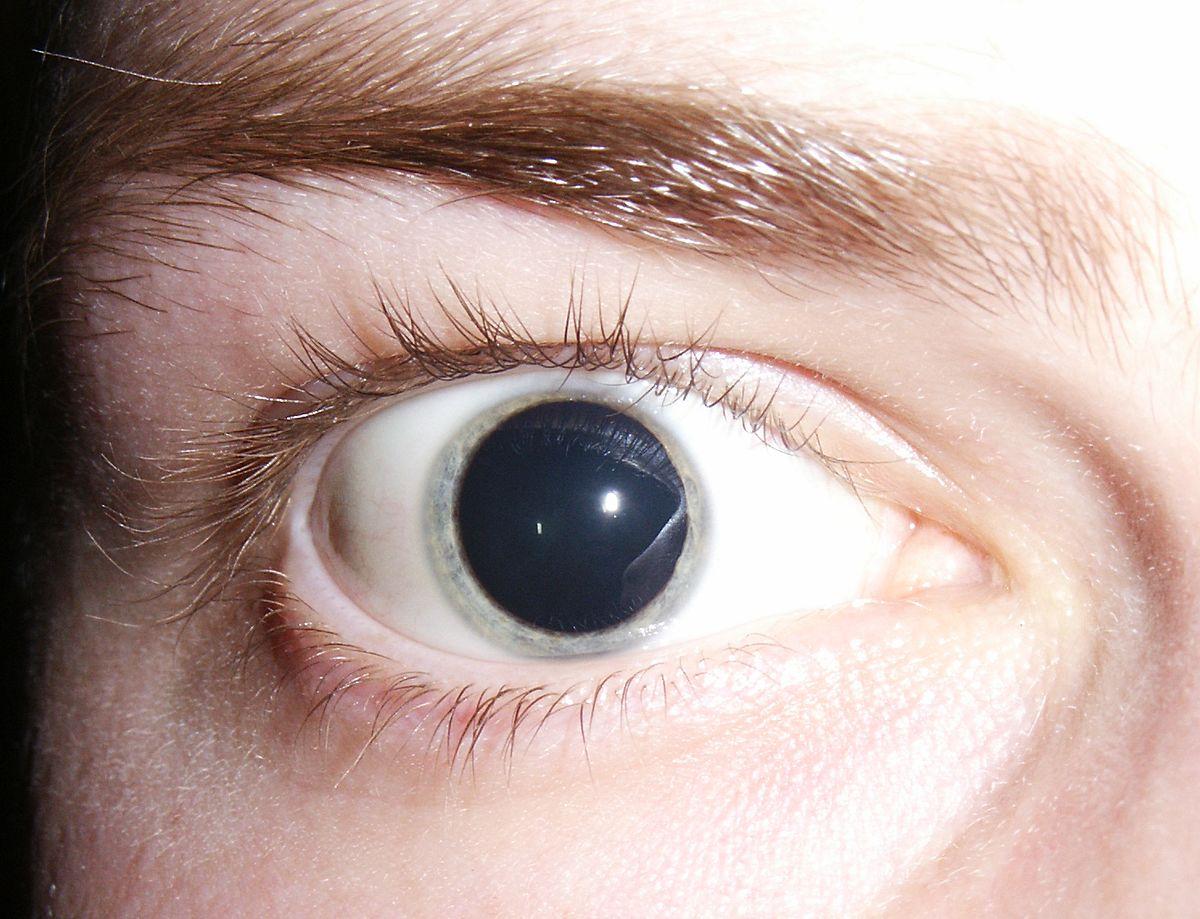 miopie pupila dilatată