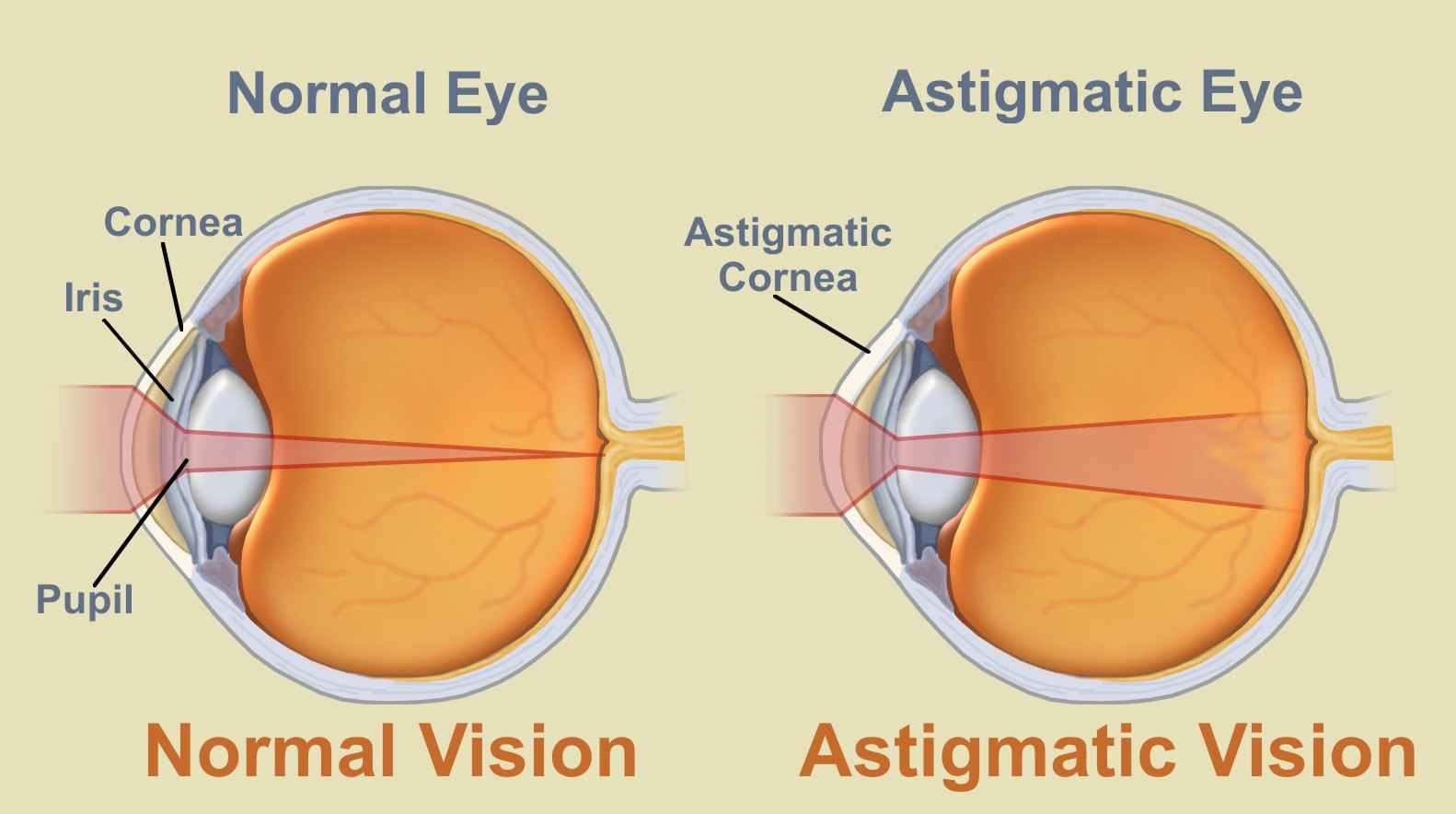 astigmatism viziune umană