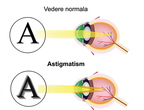 cum se tratează astigmatismul miopiei cum miopia va restabili vederea
