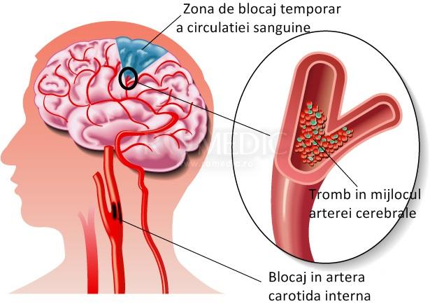 ce este afectarea vizuală de origine vasculară