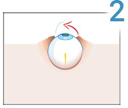 cât costă corectarea vederii cu laser