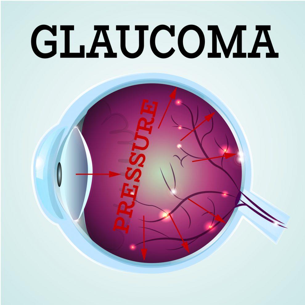 glaucom miopiei congenitale